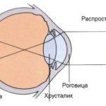 blizorukost-miopiya