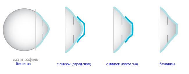 nochnye-linzy-dlya-vosstanovleniya-zreniya