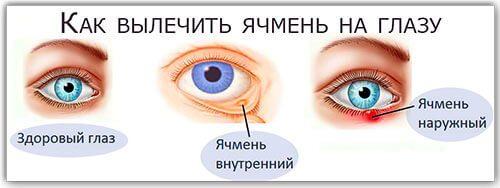 yachmen-na-glazu-prichiny-poyavleniya-i-lechenie