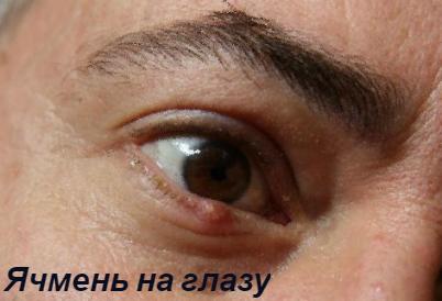 ячмень на глазу/ prichiny-i-lechenie