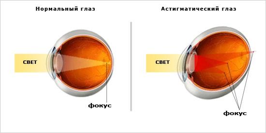 astigmatizm-glaz-foto