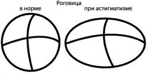 astigmatizm-lechenie