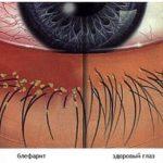 blefarit-simptomy