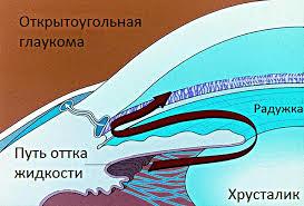 Все о глаукоме и ее лечении фото thumbnail