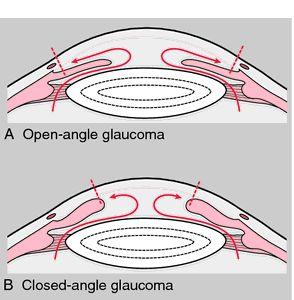 vidy-glaukomy