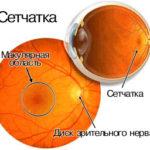 distrofiya-setchatki-chto-eto-takoe
