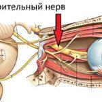atrofiya-zritelnogo-nerva-kak-lechit