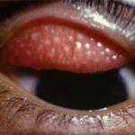 trahoma-lechenie