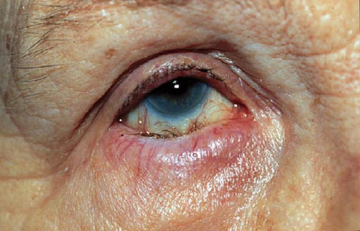 trahoma