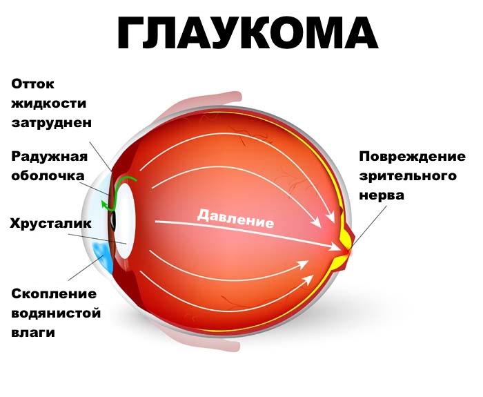 zabolevaniya-zritelnogo-nerva
