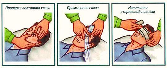 pervaya-pomosch-pri-povrezhdenii-glaz