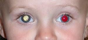 rak-glaza-simptomy-foto-u-detej