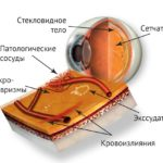 retinopatiya-chto-eto-takoe