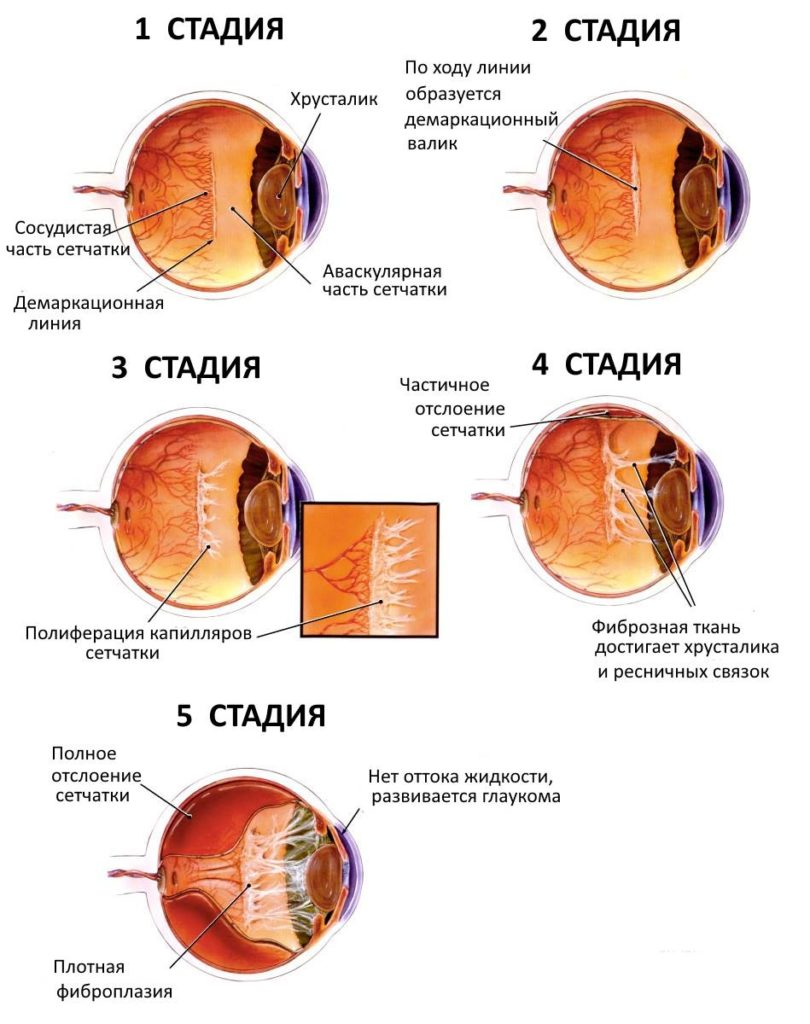 stadii-retinopatii