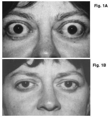 Фото женщины, больной офтальмопатией