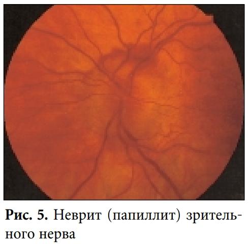 Неврит зрительного нерва: фото