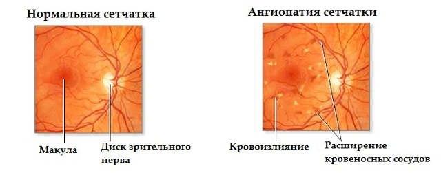 angiopatiya-setchatki-glaza-u-rebenka