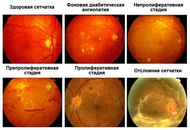 angiopatiya-setchatki-stadii