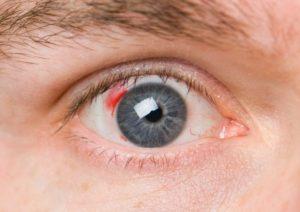 Ангиосклероз сосудов сетчатки код мкб 10 thumbnail