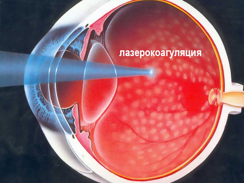 lazernaya-koagulyatsiya-pri-angiopatii