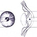 glaznoe-zabolevanie-iridotsiklit