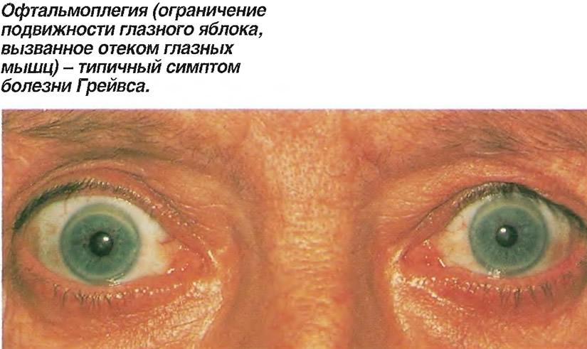 chto-takoe-oftalmoplegiya