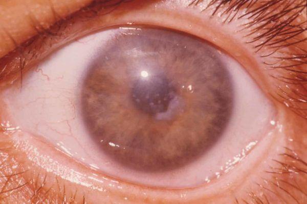 Дистрофия роговицы глаза: фото
