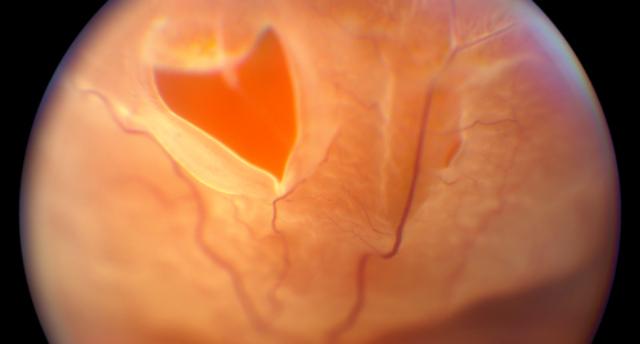 Разрыв сетчатки (фото)