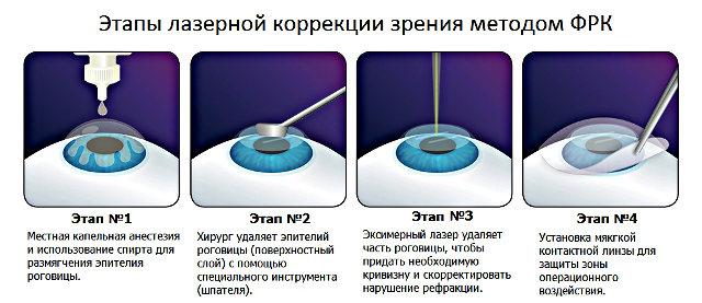 frk-korrektsiya-zreniya-etapy-stadii