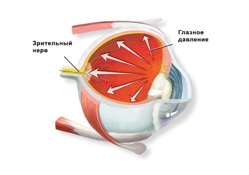 При повышенном ВГД возможно повреждение зрительного нерва