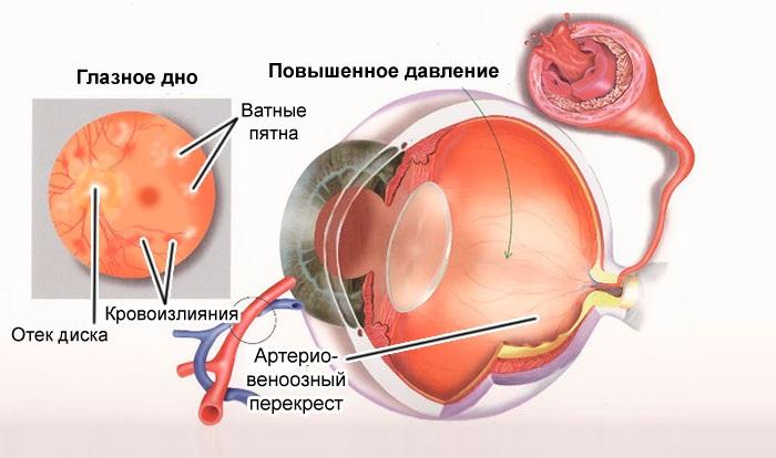 Высокое глазное давление — причины и лечение, что делать