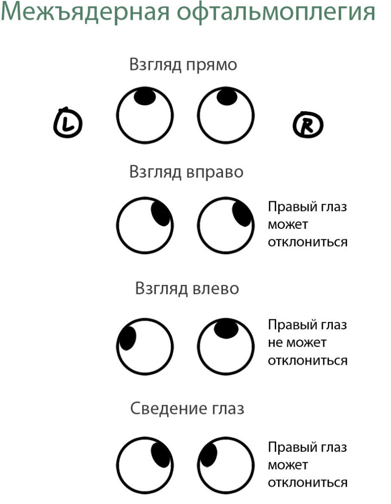 mezhjyadernaya