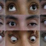 oftalmoplegiya-lechenie