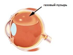 operatsiya-ot-razryva