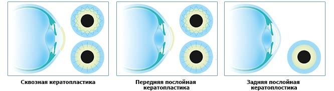 skvoznaya-i-posloinaya-keratoplastika