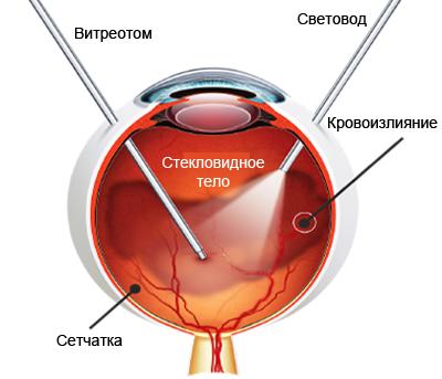 zadnyaya-totalnaya