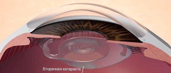prichiny-vtorichnoj-katarakty