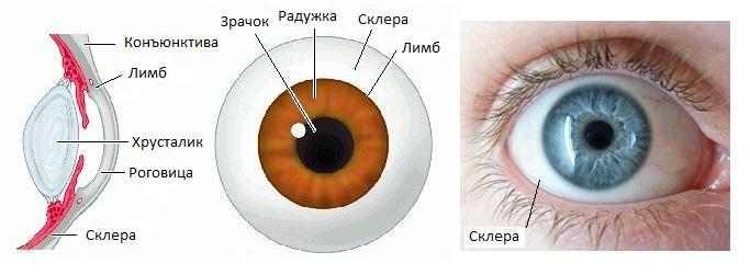 skleroplastika