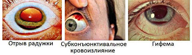 posledstviya ushiba - Ударил глаз веткой болит что делать