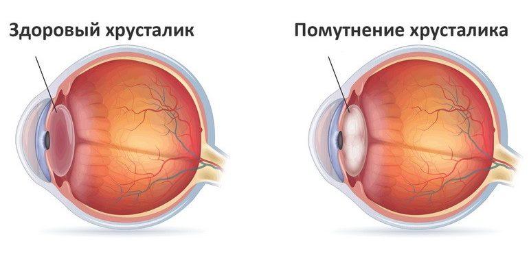 prichiny-katarakty