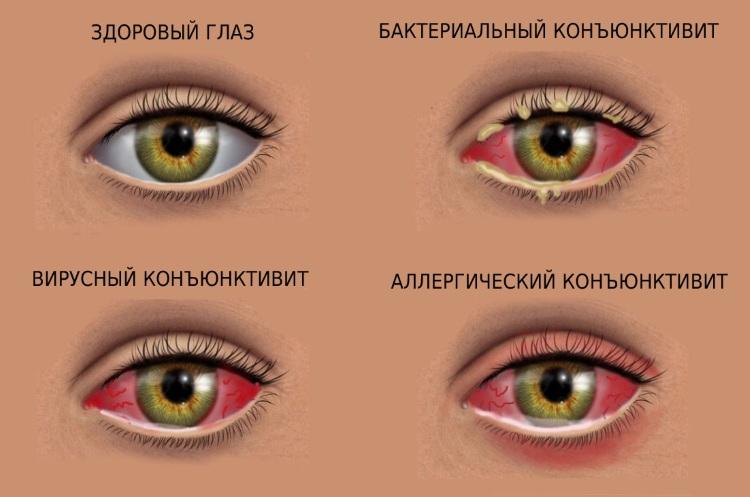 pokazaniya-k-primeneniyu-kombinil