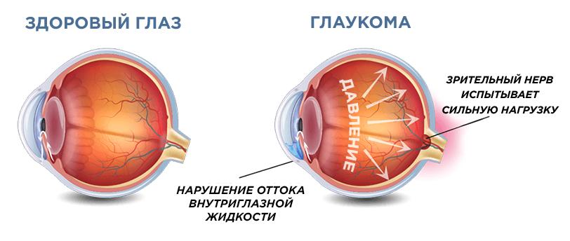 glaza-s-glaukomoj